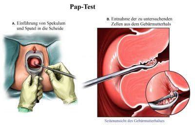 preparazione al pap test geb 228 rmutterhalskrebs impfung anzeichen symptome ursachen