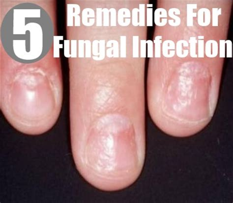pug yeast infection treatment pulmonary yeast contamination remedy yeast infection tips