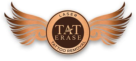 tattoo removal rochester ny tat erase laser removal rochester ny