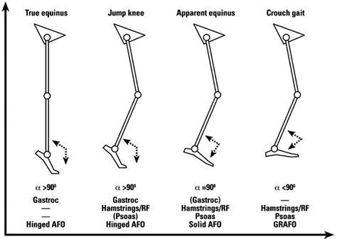 pattern deviation analysis gait analysis in children with cerebral palsy efort open
