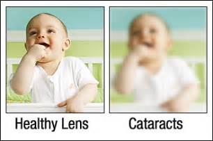 Night Blindness Driving Considering Cataract Surgery In Sarasota Or Bradenton Florida