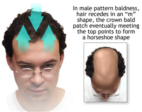 do dreads make your hairline recede does receding hairline from the side only page 2