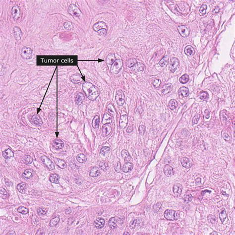 Jasper Cervical Collar Jas Scc image gallery nasopharyngeal squamous cell carcinoma