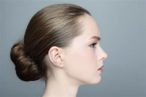 tying of hair worried of receding hairline here is how you can deal