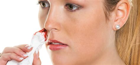 bloody nose cures for bloody nose home remedy and cures