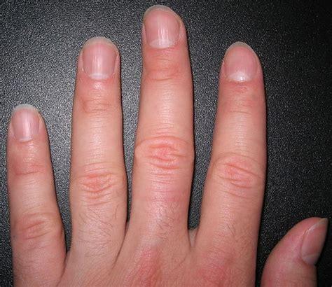 healthy nail beds fingernails your finger nails