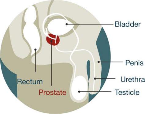 diagram bladder location cancer ministry of health nz