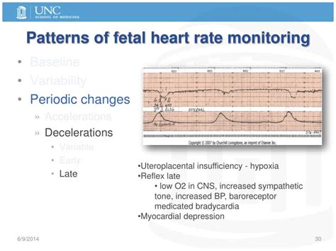pattern heart rate ppt labor and delivery physiology normal abnormal