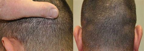 hair transplant jeddah fut hair transplant recovery in saudi arabia hair