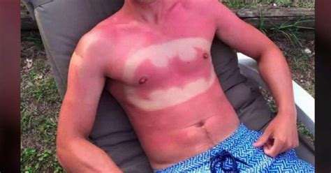 sunburn from tanning bed bad cases of sunburn photos wccb charlotte