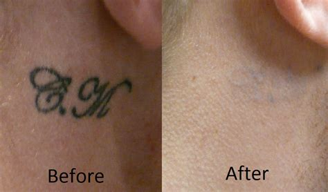 tattoo removal after 4 sessions laser removal 6 sessions symphony clinic