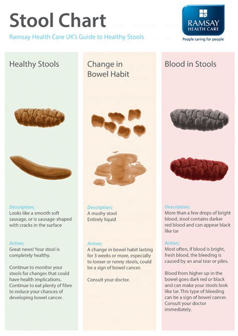 Cancer Bleeding Stool bowel cancer symptoms blood in poo could be sign what a