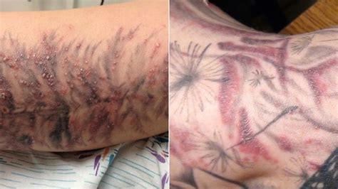redness around tattoo gross things gawker