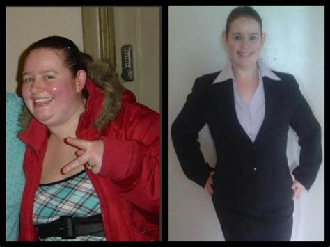weight loss 6 months after gastric sleeve sleeve gastrectomy before and after gastric sleeve