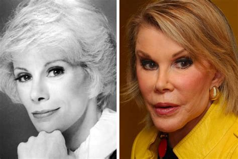 joan rivers bad plastic surgery award