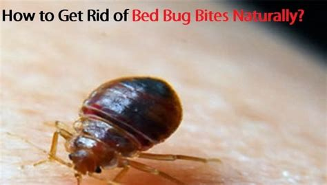 how to get rid of bed bug bites naturally