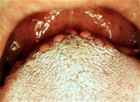 Bumps On Floor Of Tongue by Bumps On Tongue Back Front Std Hurt Pictures And