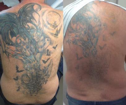 brisbane laser tattoo removal laser removal brisbane