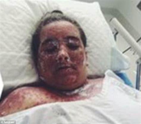 Bleaching A Bathtub by Sydney Suffers Horrific Burns After Bathing In