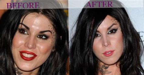 celebrity kat von d plastic surgery photos video