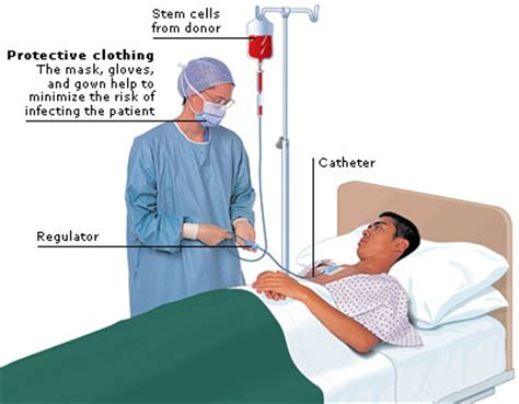 Medical Encyclopedia   Treatment: Stem Cell Transplant   Aviva