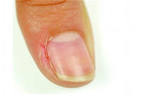 nail salon faqs skin problems center medical in the thick of it health nails magazine