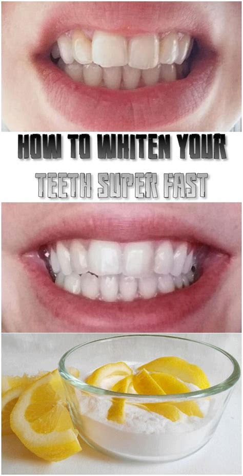 ideas  fast teeth whitening  pinterest