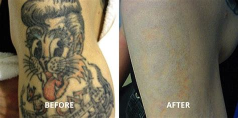 tattoo removal boston laser removal center of boston s end