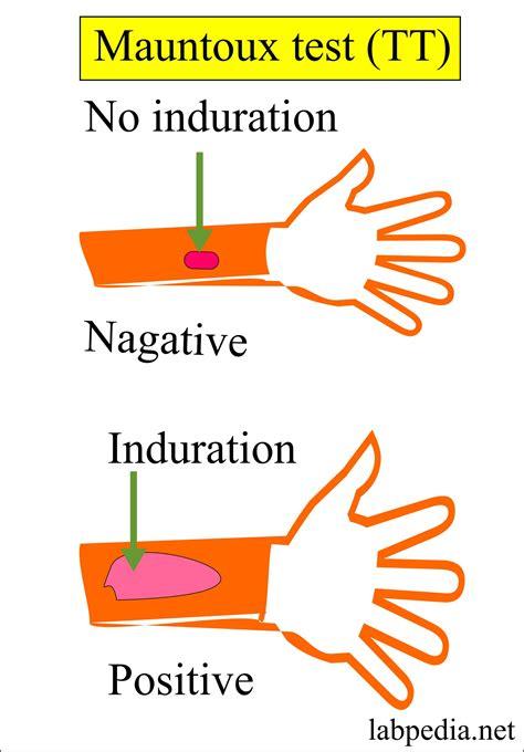test mantoux mycobacterium tuberculosis part 2 mantoux test tt