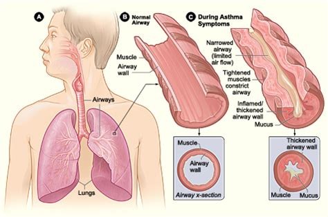 can i section someone what is asthma nhlbi nih