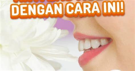Biaya Pemutihan Gigi Di Jakarta Smile spesialis klinik dokter gigi dengan biaya terjangkau jakarta smile
