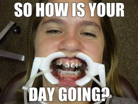Braces Girl Meme - best 25 orthodontic humor ideas on pinterest dental