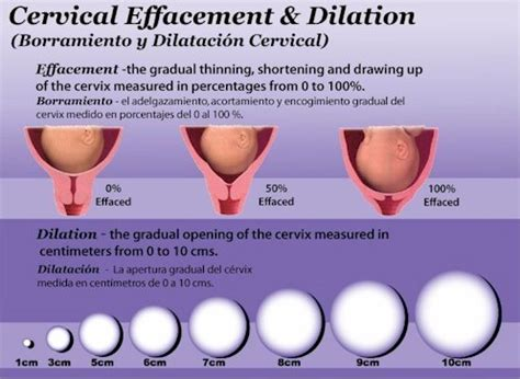 dilation effacement and station diagrams early signs of labor