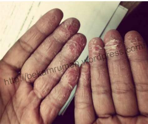Sabun Muka Non Paraben paraben dan eczema bekam ke rumah