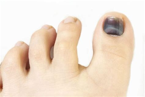 several toenails look skin color under them how to get rid of toenail fungus 5 home remedies