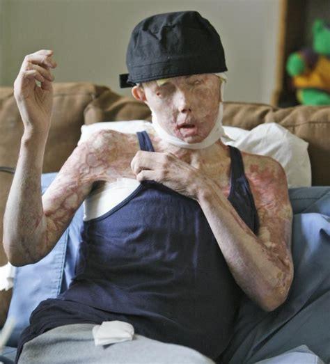 carmen tarleton woman receives full facial transplant after husband s