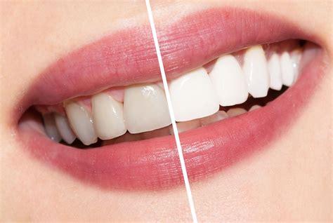 teeth whitening cader dental practice