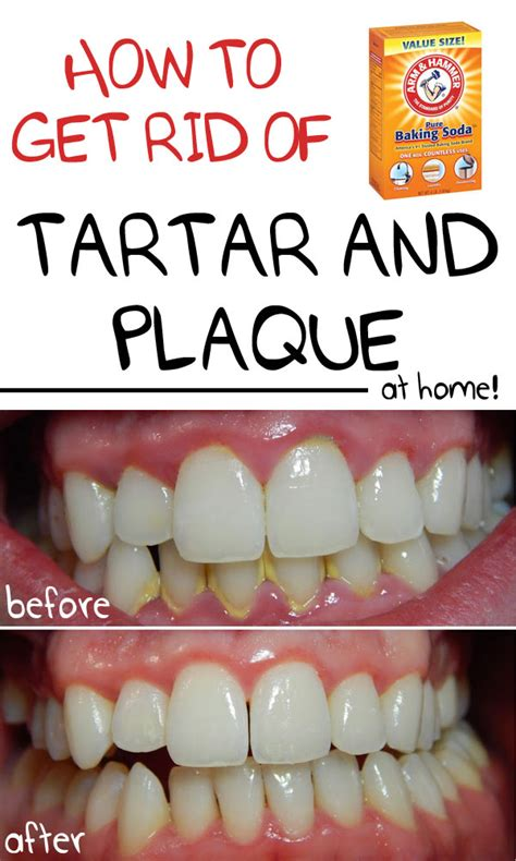 die besten 25 how to get rid of plaque on teeth ideen auf