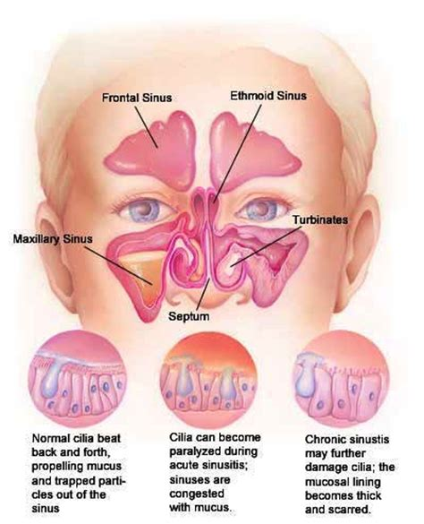 Can Detoxing Cause Sinus Inflammation by Sinusitis Homeopathic Treatment