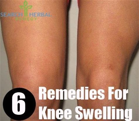 the 25 best ideas about swollen knee on find