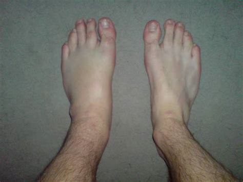is it normal to have swollen feet after c section causes of unexplained swelling of left foot and ankle