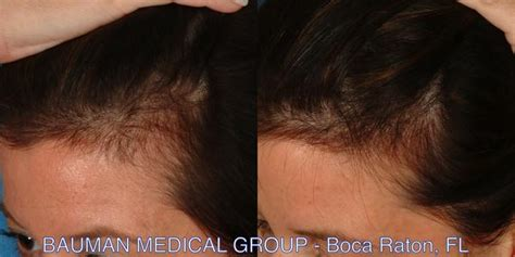 thinning temples in women does rogaine help thinning hair om hair