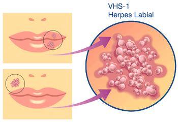 0043083706 a tempo partie orale o que 233 herpes labial sintomas e tratamentos