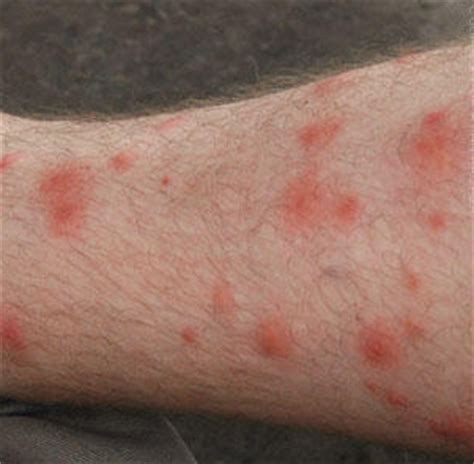 Random Cluster Of Blisters On My After Detox by Spots On Legs Itchy Pictures Dots Patches