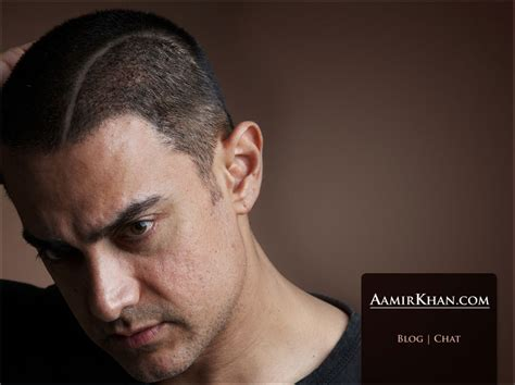Aamir Khan Hair Transplant | image
