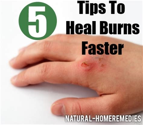 how to your to heal 3 tips to heal burns faster with diet and food how to recover faster from burns