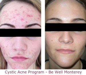 Cystic Acne Detox Diet by Cystic Acne Solution Program Be Well Monterey