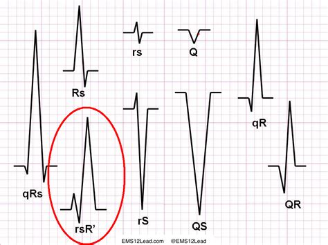 Rsr Pattern Ecg Meaning   related keywords suggestions for rsr ekg