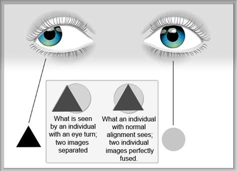 ambliopia test strabismus amblyopia nielsen vision development center