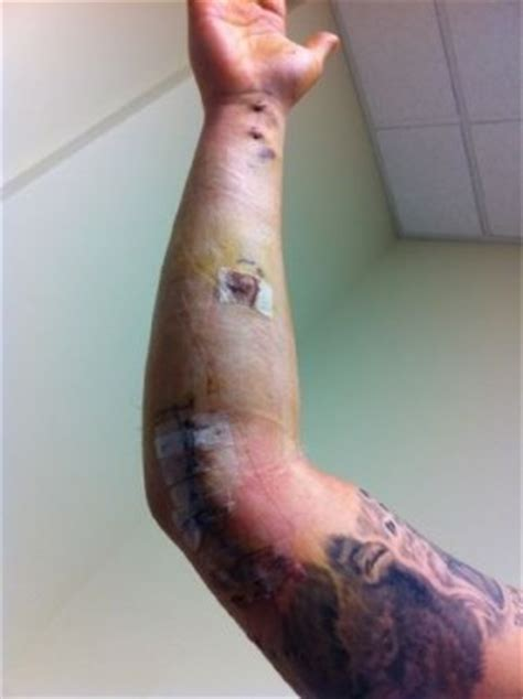 tommy john tattoo yikes joba chamberlain s arm post surgery